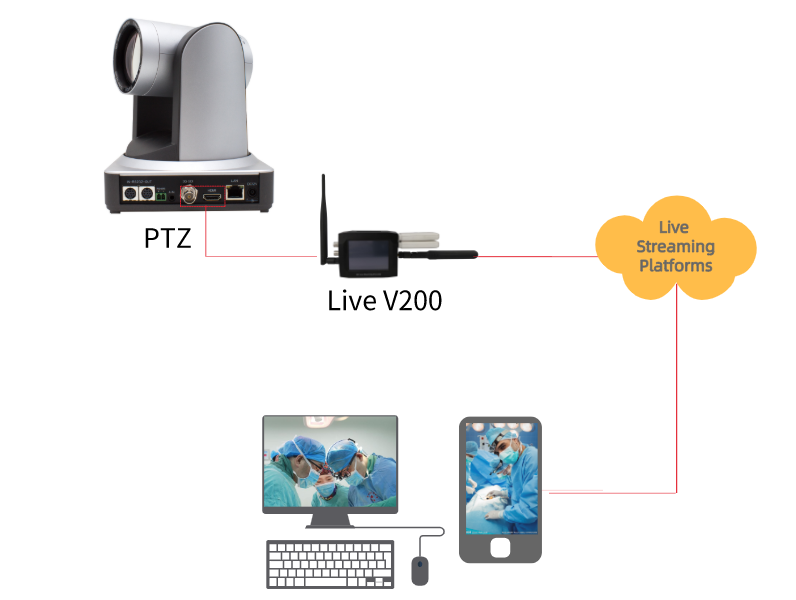 LIVEV200 SUCCESSFULLY IMPLEMENTED IN THE MEDICAL SURGICAL VIDEO STREAMING